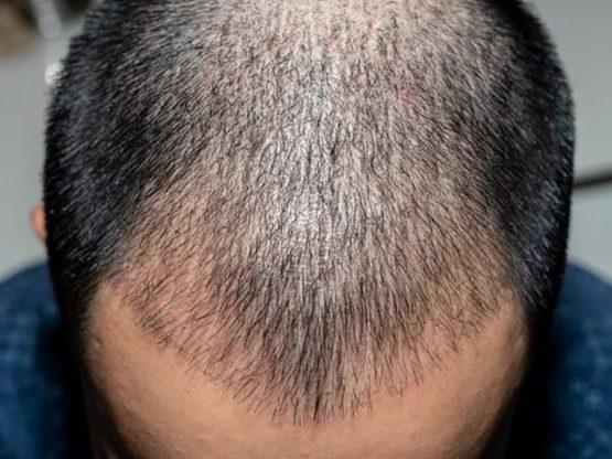 пересадка волос для мужчин в москве