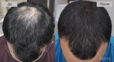 пересадка волос в клинике
