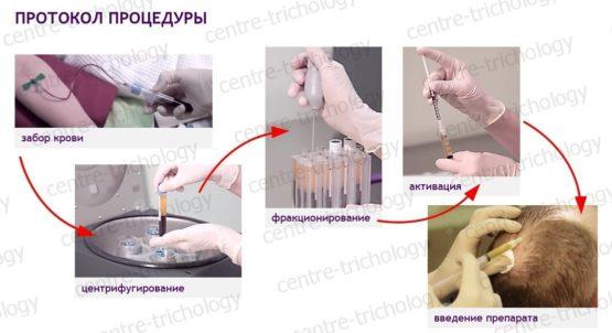Что такое процедура плазмотерапия endoret