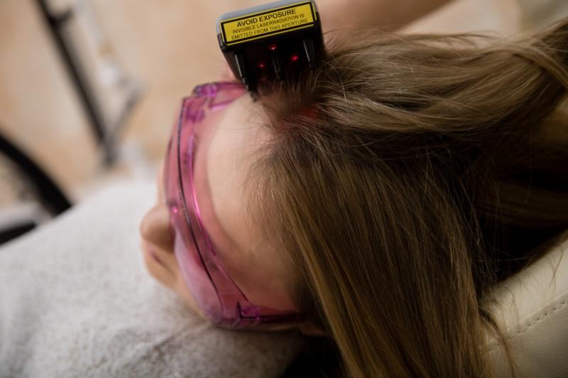 Трихология: лазерная терапия волос