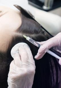 Мезотерапия кожи головы и волос
