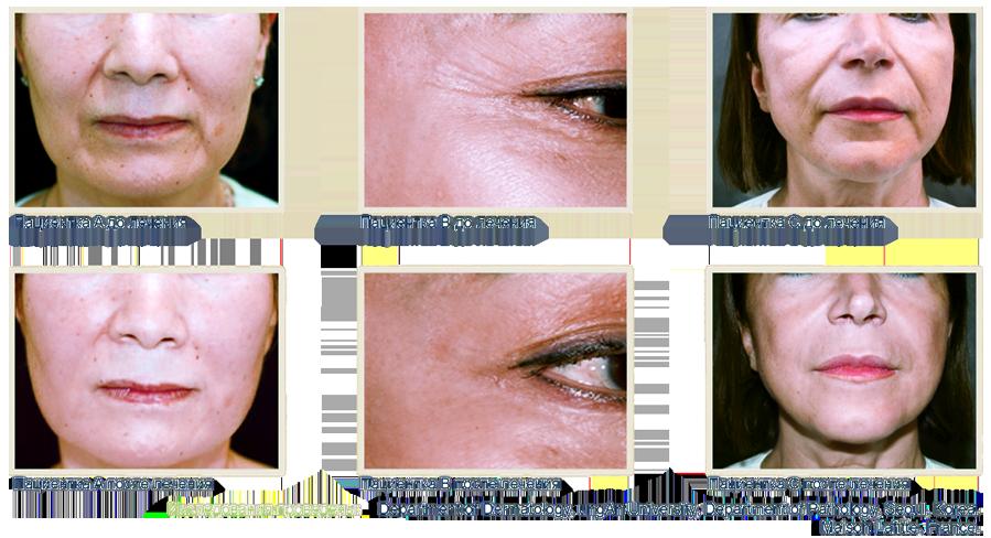 Результаты до и после плазмотерапии